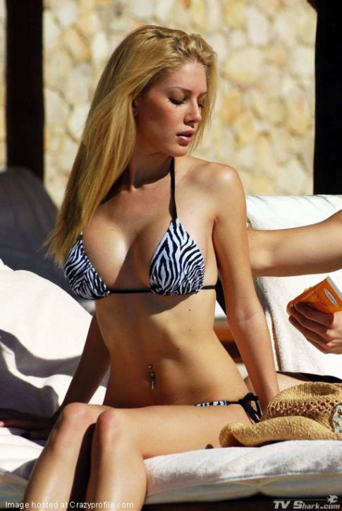 heidi montag surgery scars photos. hairstyles heidi montag plastic surgery heidi montag plastic surgery scars.